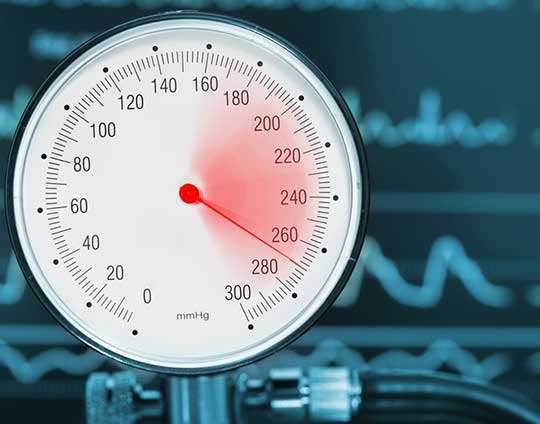 High-Blood-Pressure-Resulting-from-End-Stage-Renal-Disease